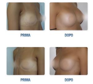Migliori chirurghi estetici Milano
