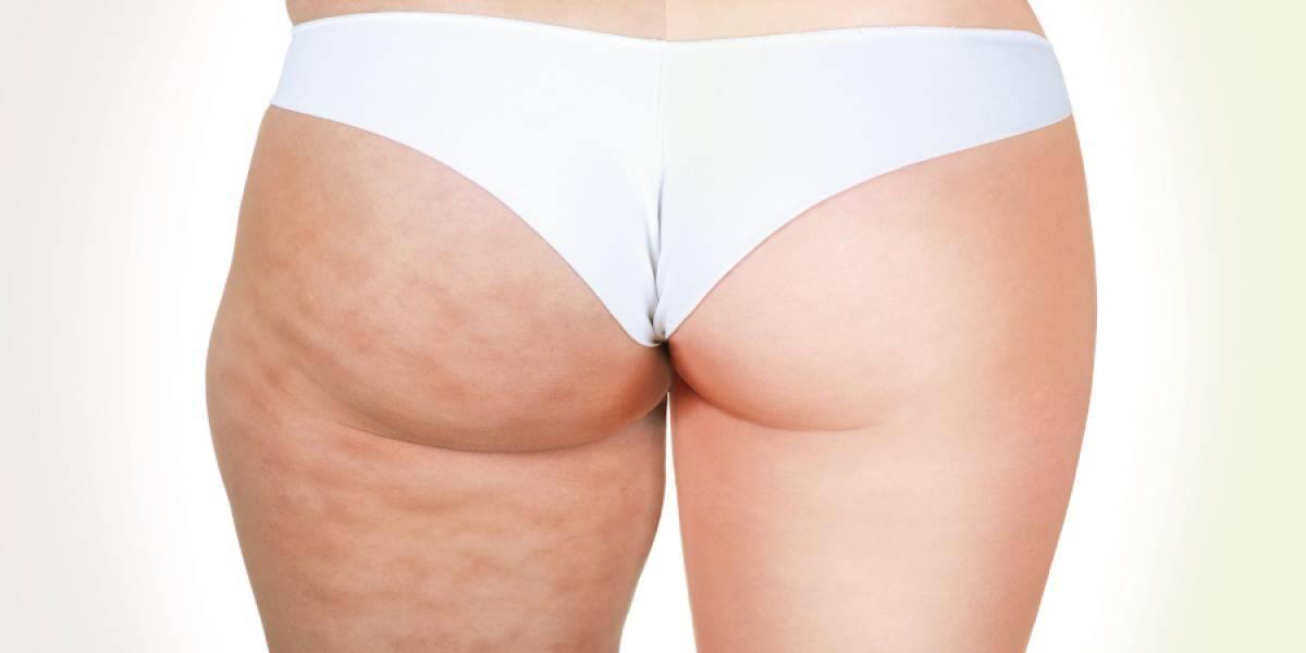 Togliere cellulite 1