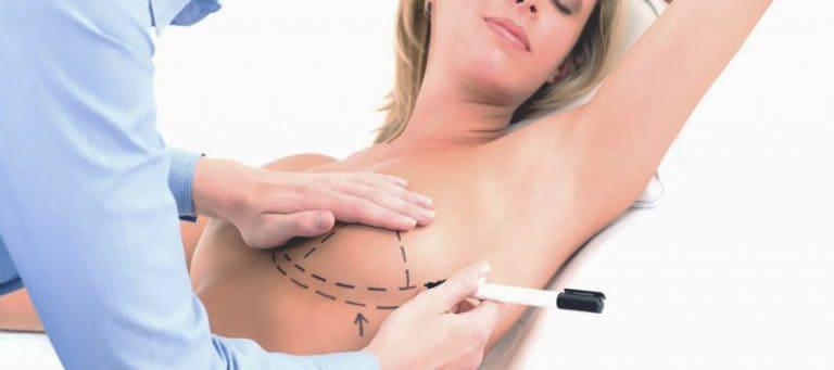 Quanto costa rifarsi il seno 2