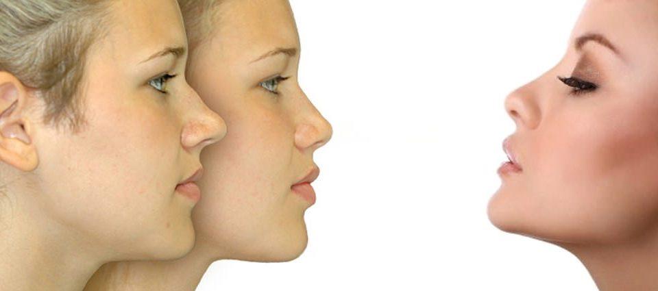 Rinoplastica nasale Milano
