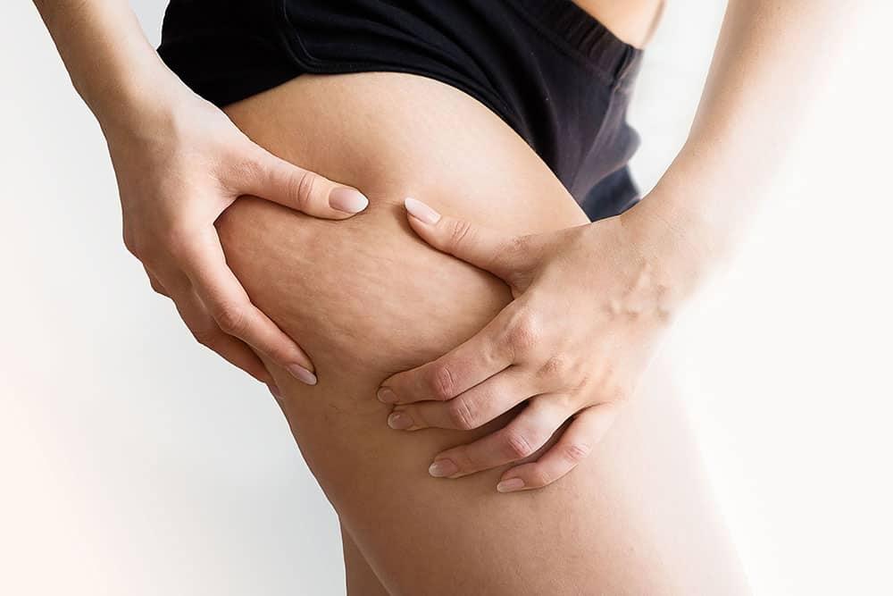 Cellulite gambe rimedi