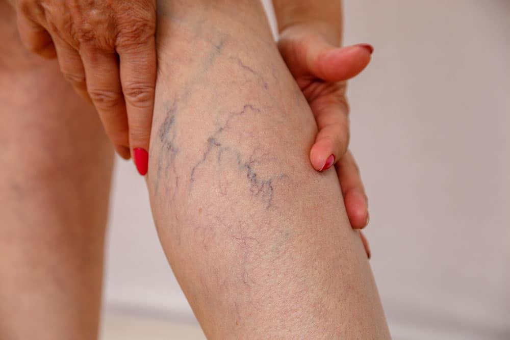 Come rimuovere le vene e i capillari?