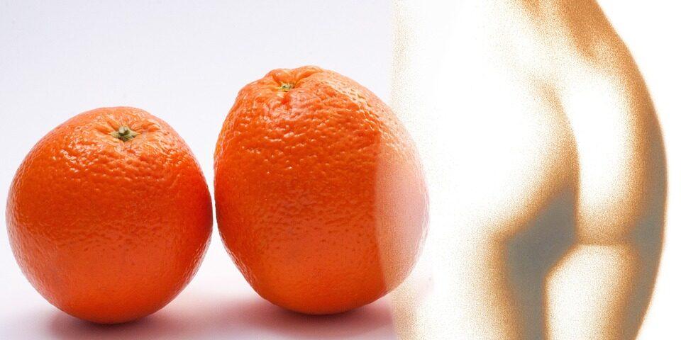 cellulite rimedi efficace