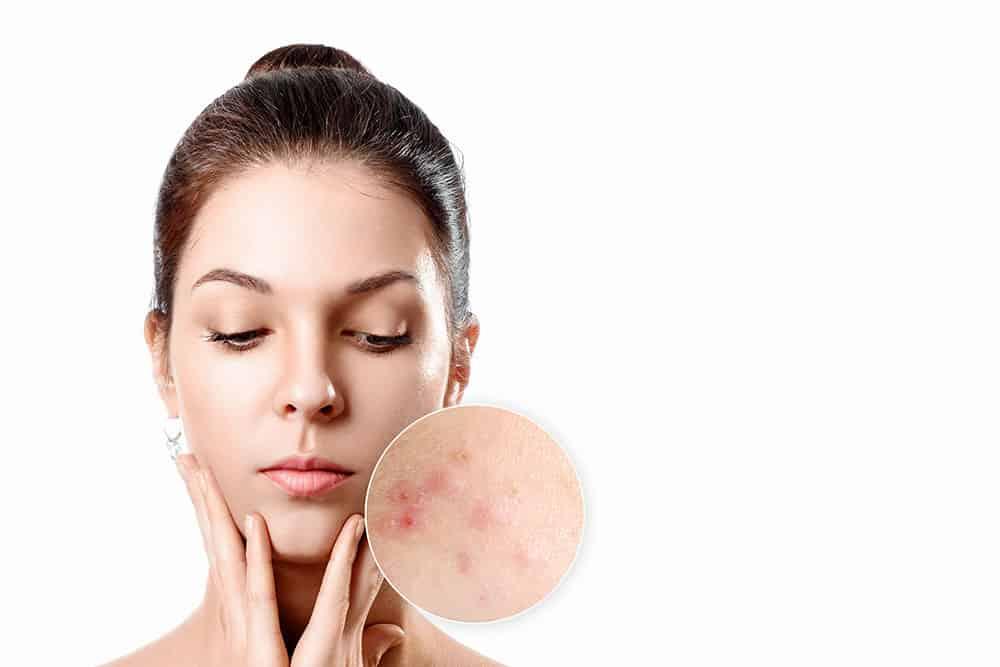 Visita dermatologica acne Milano
