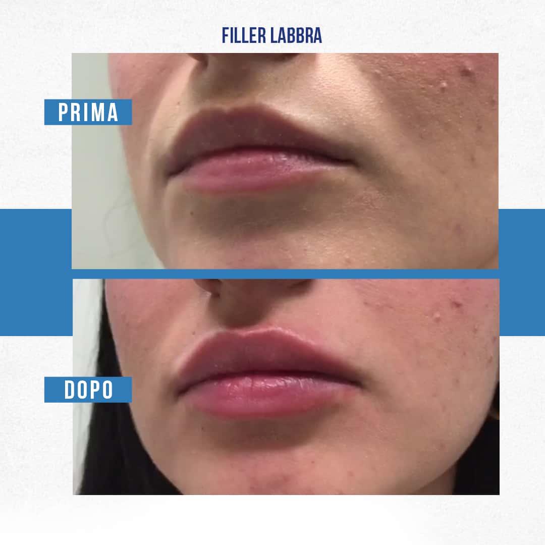 IMG-Filler-labbra-01