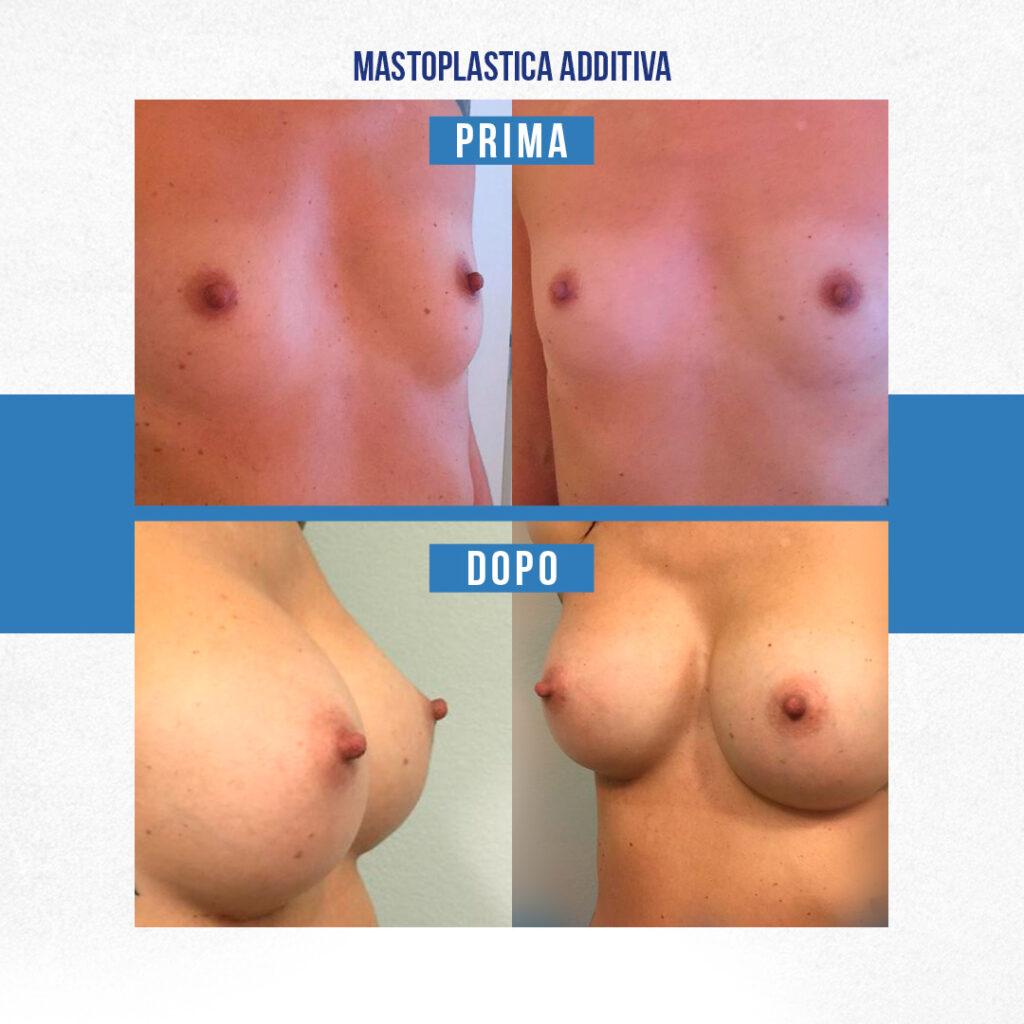 Mastoplastica additiva Milano