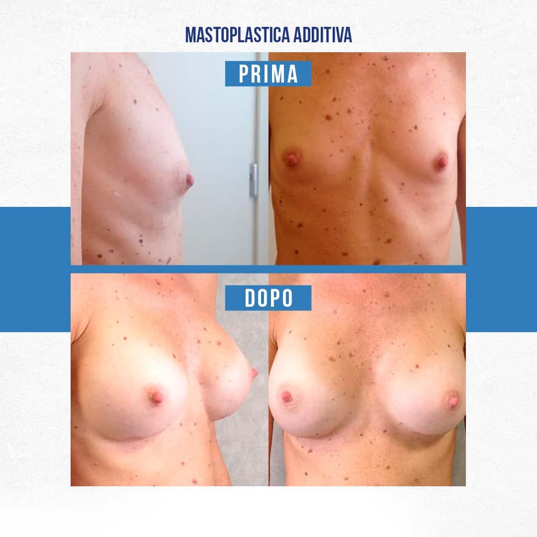 IMG-Prima-Dopo-Mastoplastica-additiva-3