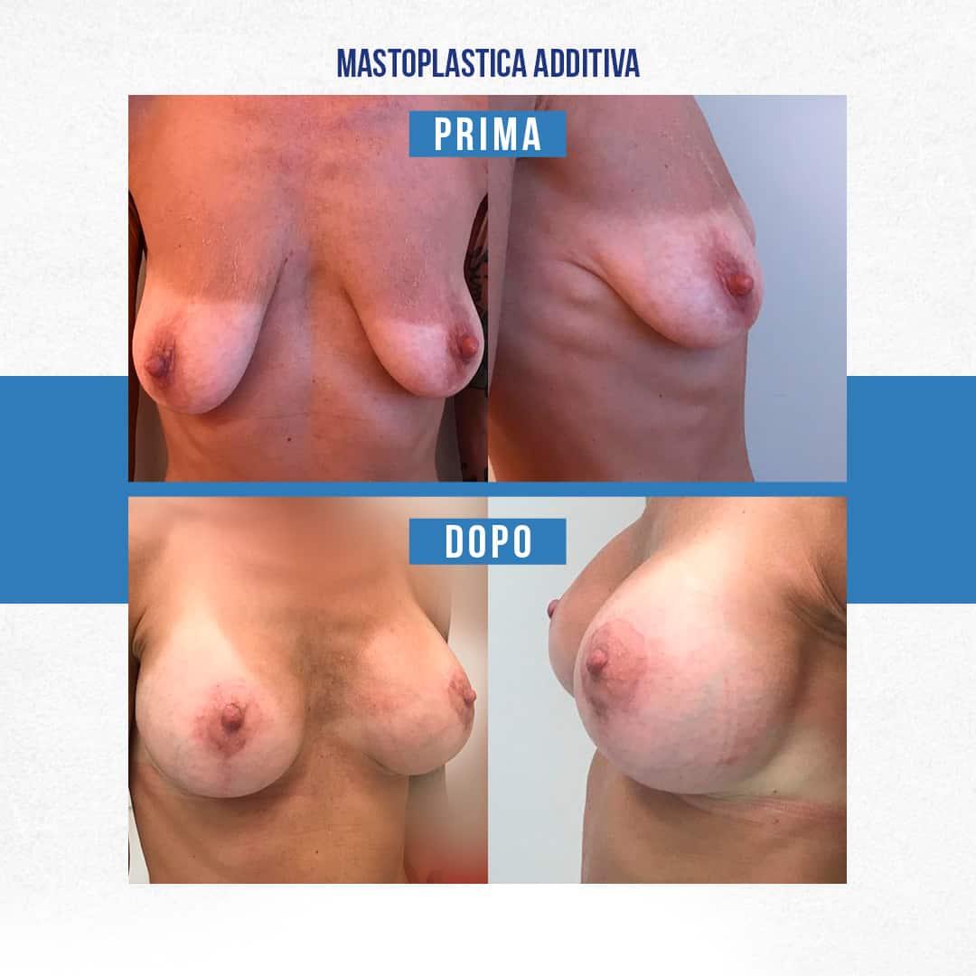 IMG-Prima-Dopo-Mastoplastica-additiva-4