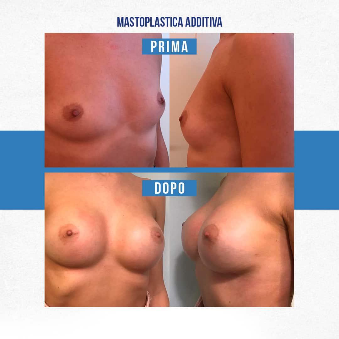 IMG-Prima-Dopo-Mastoplastica-additiva-6