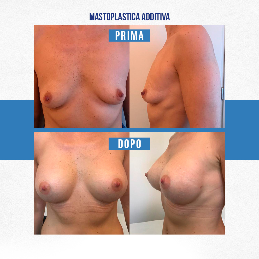 IMG-Prima-Dopo-Mastoplastica-additiva-7