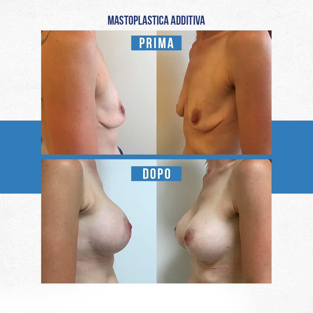 Prima-Dopo-Mastoplastica-additiva-8
